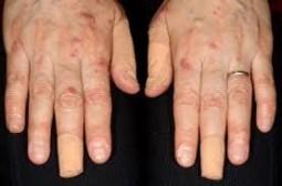 ヘアカラー剤のアレルギー症状、ヘアカラー剤中に使用