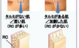 ポーラ化成、シワ・たるみの改善、肌荒れの原因等解明②
