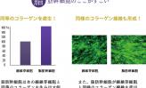 ロート製薬の幹細胞研究  ~脂肪肝細胞、真皮繊維芽細胞のコラーゲン等の産生能力向上を確認~(上)